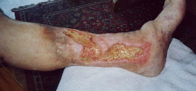 img-ulcera-venosa
