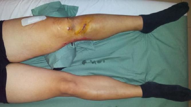 img_lesione-LCA-ginocchio